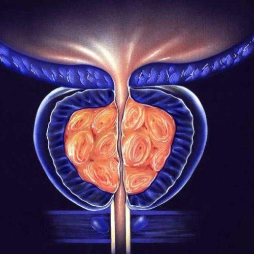 Программа «Лечение рака предстательной железы»