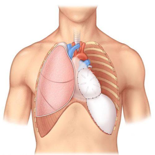 Программа «Восстановление иммунитета человека»