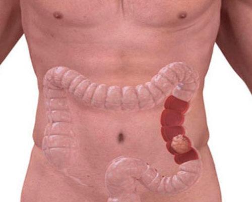 Программа «Лечение рака кишечника»