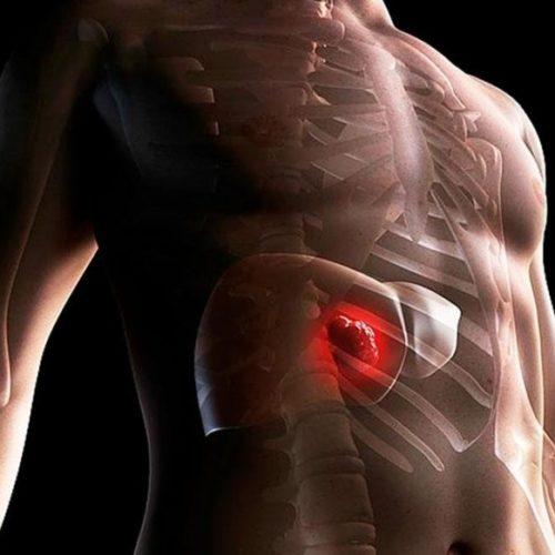 Программа «Лечение рака печени»